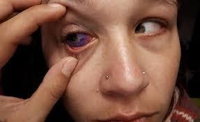 eyeball tattoo warning u0027you only get one set of eyes u0027 radio new