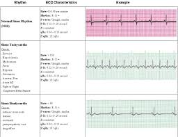 acls rhythms pg 1 of 7 saving american hearts inc aha acls bls