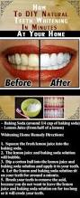 Dentist That Do Teeth Whitening Best 25 Teeth Whitening Ideas On Pinterest Teeth Whiteners