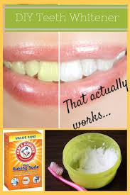Dentist That Do Teeth Whitening 262 Best Dental Tips And Advice Images On Pinterest Dental