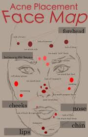 Face Acne Map Infographic