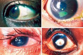 What Does Night Blindness Mean Community Eye Health Journal Prevention Of Childhood Blindness