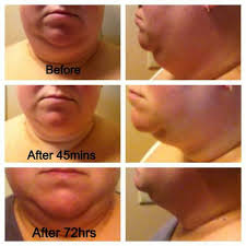 wraps reviews 9 best chin neck before after pictures images on