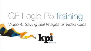 ge logiq p5 training teaser saving still images or video clips