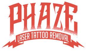 laser tattoo removal in las vegas astanza laser llc