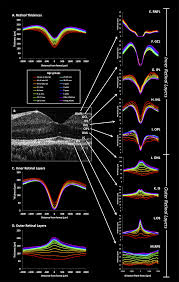 pediatric optical coherence tomography in clinical practice u2014recent
