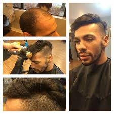 hair bonding what causes pattern baldness salon juan hair salon
