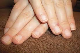 diagnosing different nail types health nails magazine