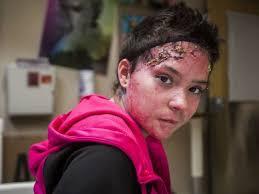 treatment a breakthrough for burn victims