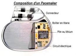 pacemaker chambre de tpe pacemaker s6 page 2 tpe pacemaker skyrock com
