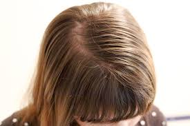 hair care tips for fine thin oily hair livestrong com