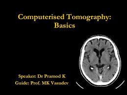 Ct Anatomy Of Brain Ppt Ct Basics