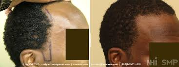 hair transplant for black women balding blog hair transplantation archives wrassman m d