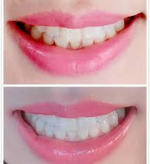 Does Laser Teeth Whitening Work Whitening Zoom Teeth Whitening Lima Amazing 1 Hour Teeth