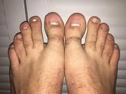 grandma u0027s way to get rid of foot fungus only 2 ingredients