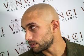 best hair loss treatments for men vinci hair clinic
