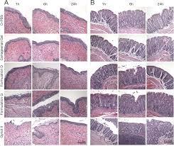 Challenge Herpes Zinc Acetate Carrageenan Gels Exhibit Potent Activity In Vivo