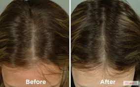 How Does Light Therapy Work Laser Therapy U2013 West La Hair Restoration