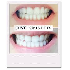 Cost Of Teeth Whitening Pearly Whites Best Teeth Whitening Kit 2x At Home Teeth Whitener