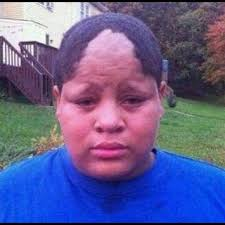 Messed Up Hairline - cul de sac hairline imnotatoy