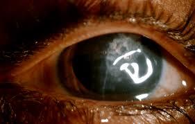clinical photograph of the left eye following corneal tear repair