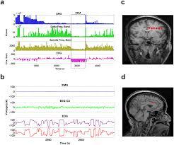 frontal beta theta network during rem sleep elife