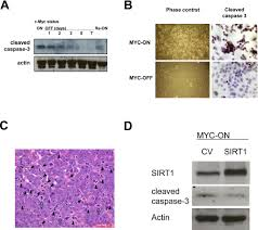 sirt1 and c myc promote liver tumor cell survival and predict poor