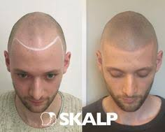 found a unique solution to hiding pattern baldness