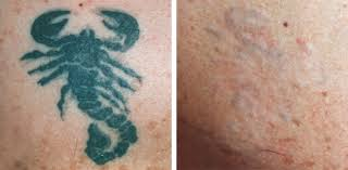 natural tattoo removal the leaked secret to excision tattoo