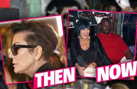 kris jenner haircut kris jenner wears wig to cover hair loss his hair clinic