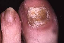 mycose siège bébé mycose la mycose causes symptomes traitement dermatologue en