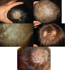 Stem Cells Hair Loss Hair Loss Ringworm U2013 Drhillhairloss