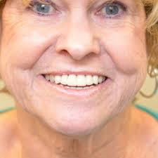 teeth in a day jacksonville beach florida fl u2013 jax beach family