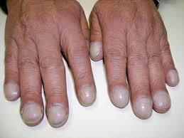 nail clubbing wikipedia