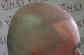100 tattooed hair for bald men 52 best bald and bearded