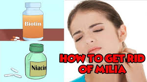 milia how to get rid of milia healthy wealthy youtube