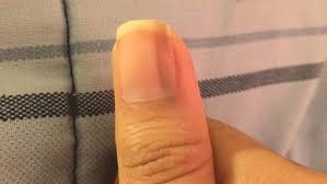 how to get rid of black lines on nails the tips and causes you