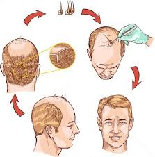 hair transplant calculator hair transplant cost in delhi hair implant in delhi
