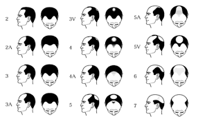 rapidly losing hair mpb rate my hair loss on norwood scale