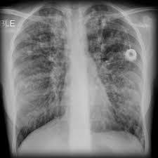 Radiology Of Thorax Cystic Fibrosis Pulmonary Manifestations Radiology Reference