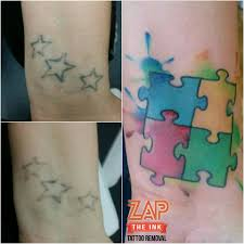 zap the ink laser tattoo removal home facebook