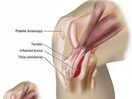 Picture Of Human Knee Muscles Knee Pain From Running