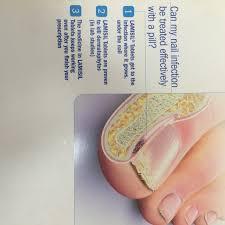 fungus nail athlet foot dermatophytosis of nail sepmedical