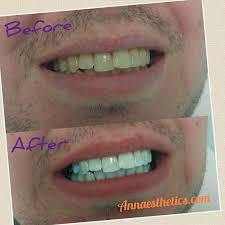 Does Laser Teeth Whitening Work Zoom Teeth Whitening Tampa Laser Teeth Bleaching Westchase
