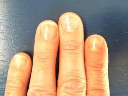 nail magic the original nail hardener u0026 conditioner review