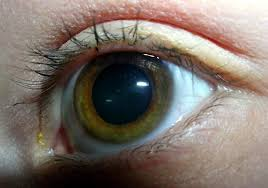 Symtoms Of Blindness New Eye Test Could Detect Glaucoma Years Earlier Unsw Newsroom