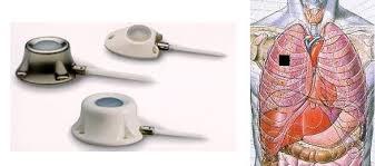 chambre d injection les chambres veineuses implantées