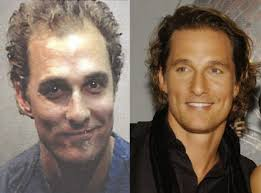 fienes hair transplant chatter busy matthew mcconaughey hair transplant b4 money and