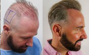 best hairtransplant in the world chris butland steed on his hair transplant