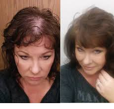 rachel thinning hair make very thin hair look fuller youtube